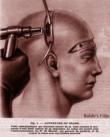 http://baldomero.online.fr/lobotomie/crane2.jpg